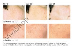 Skin Doctors SD White Отбеливающий крем для лица от пигментных пятен 50.